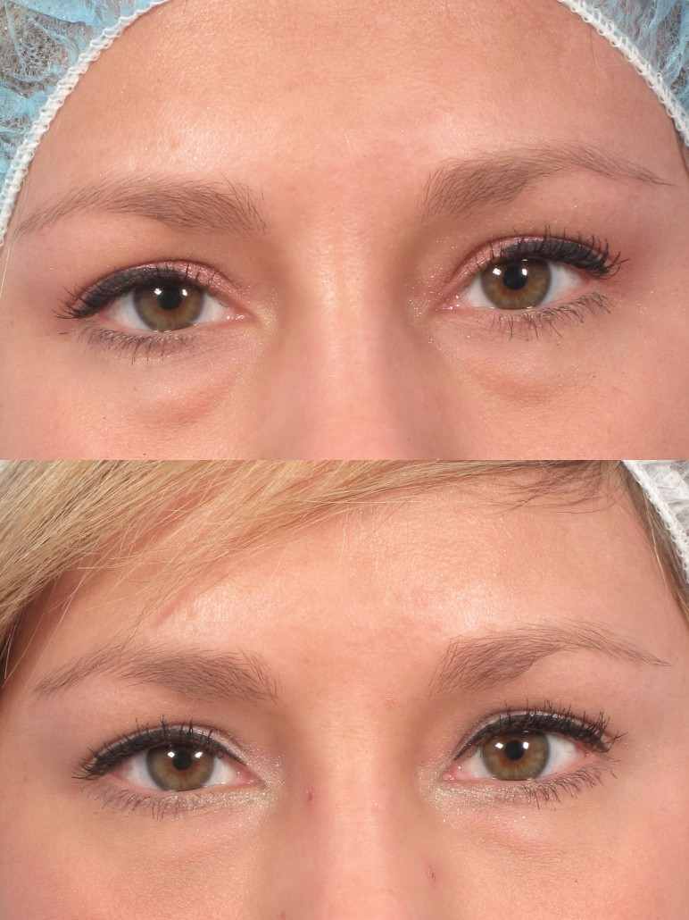 under eye bags removal